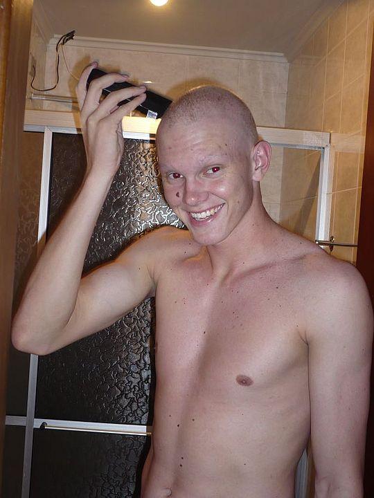 Douglas perdeu os cabelos e os pelos do rosto quando teve o tumor (Foto: Acervo pessoal)